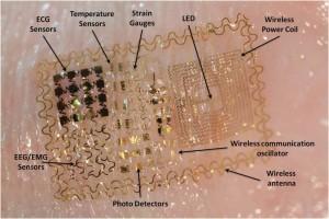 Electronic Skin